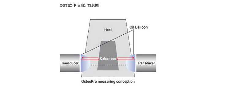 韩国进口骨密度测试仪Smart原理