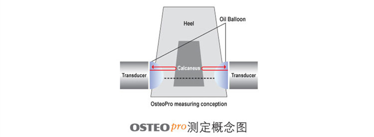 韩国进口骨密度测试仪UBD2002A原理检测示意图